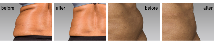 before and after sculpsure testimonials